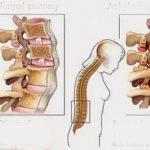 Các bệnh lý cột sống thường gặp