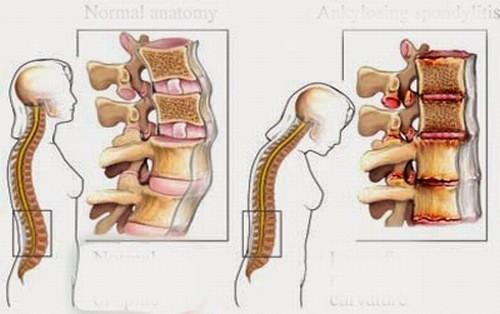 Các bệnh lý cột sống cần được phát hiện sớm và điều trị hiệu quả