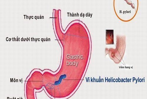 Cẩn thận với viêm xung huyết hang vị dạ dày