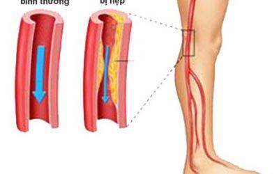 Những bệnh lý nào liên quan đến bệnh cao huyết áp