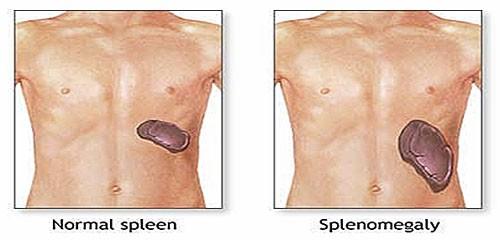 Phì đại lá lách tiến triển nghiêm trọng cần thực hiện cắt bỏ