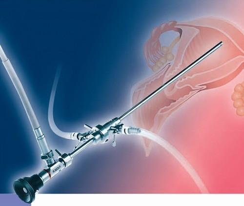 Nội soi buồng tử cung là thủ thuật dùng để chẩn đoán hoặc điều trị một số bệnh ở tử cung.