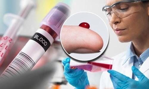 Xét nghiệm máu chẩn đoán chỉ số lym trong máu