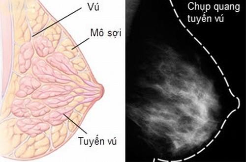 X quang tuyến vú cần thiết trong chẩn đoán các bệnh lý tuyến vú
