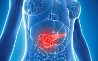 Cơ hội sống cho bệnh nhân ung thư tuyến tụy