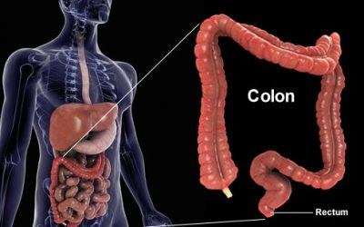 8 Hình ảnh giúp bạn hiểu rõ nhất về ung thư đại tràng