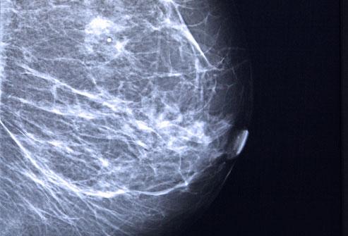 hình ảnh ung thư vú