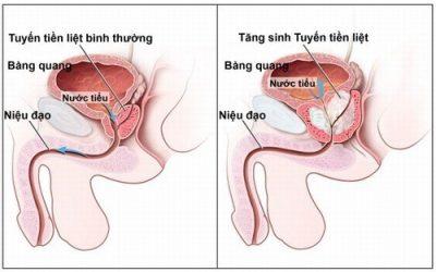 Phẫu thuật u xơ tuyến tiền liệt ở đâu tốt nhất hiện nay?
