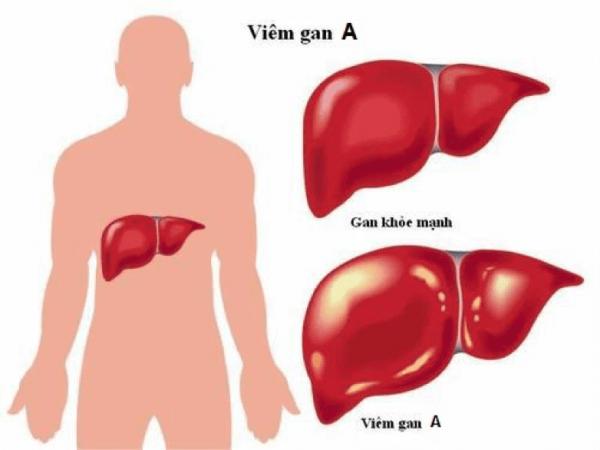 Viêm gan A cần được phát hiện sớm và điều trị hiệu quả