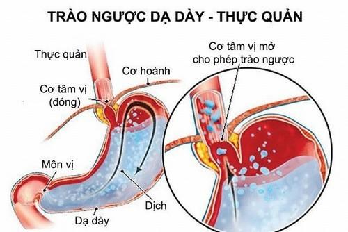 Trào ngược dạ dày thực quản cần được phát hiện sớm và điều trị kịp thời hiệu quả