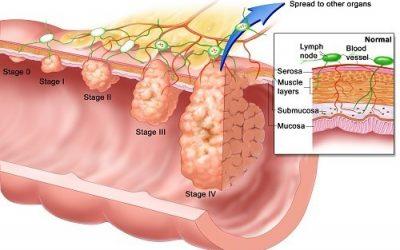 Ung thư đại tràng giai đoạn 3 sống được bao lâu?