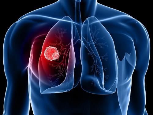 Ung thư phổi