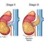 Ung thư thận giai đoạn 1 sống được bao lâu?