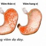 Viêm dạ dày nguyên nhân do đâu?