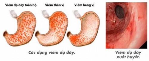 Các dạng viêm dạ dày cần được phát hiện sớm và điều trị hiệu quả