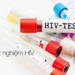 Xét nghiệm hiv mất bao nhiêu tiền?
