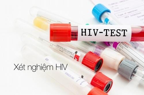 HIV là chỉ định cần thiết trong chẩn đoán sức khỏe