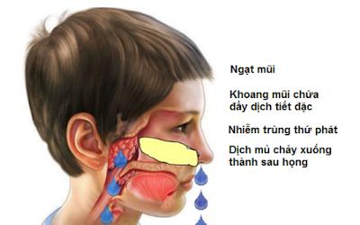 Các biểu hiện viêm VA ở trẻ mà cha mẹ NÊN BIẾT