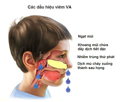 Các biểu hiện viêm VA ở trẻ cần được phát hiện sớm