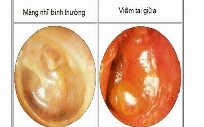 Cẩn trọng với bệnh viêm tai giữa