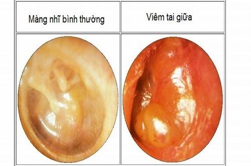 Viêm tai giữa nếu không được chữa trị hiệu quả có thể dẫn đến biến chứng nguy hiểm