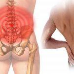 Đau xương cụt là bệnh gì?
