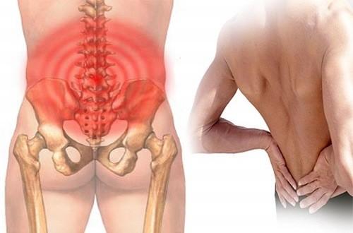 Thoái hóa cột sống cũng gây triệu chứng đau xương cụt