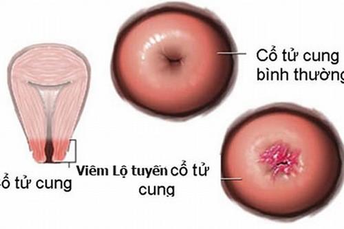 Đốt viêm lộ tuyến cổ tử cung thực hiện đơn giản và khá hiệu quả.