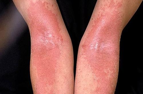 Eczema là bệnh cần được phát hiện sớm và điều trị hiệu quả