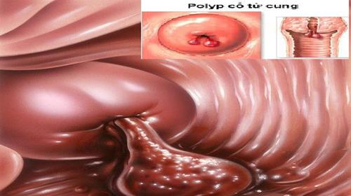 Polyp cổ tử cung là bệnh thường gặp ở các chị em ảnh hưởng đến sức khỏe, và khả năng sinh sản.