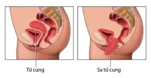 Bình thường tử cung ở ngay bên trên âm đạo, khi xảy ra sa tử cung, tử cung thì sẽ bị tụt xuống lòng âm đạo.