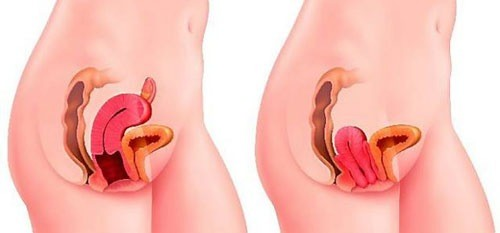 Sa tử cung có thể gây ra một số biến chứng ảnh hưởng sức khỏe và khả năng sinh sản.