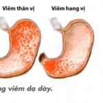 Hình ảnh viêm hang vị dạ dày