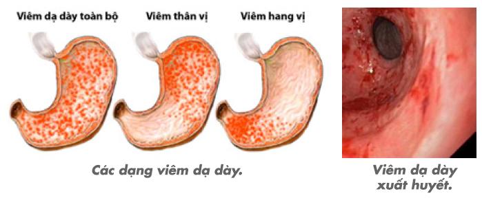 Hình ảnh mô phỏng viêm hang vị dạ dày