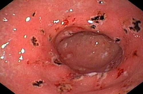 Hình ảnh viêm hang vị dạ dày qua nội soi có chấm xuất huyết