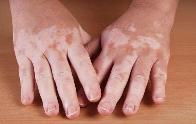 Nguyên nhân và cách điều trị bệnh bạch biến