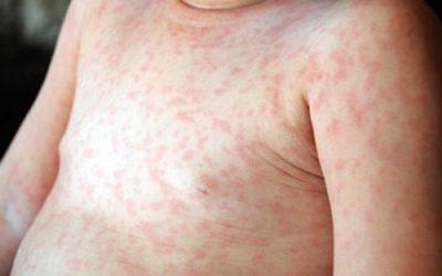 Những bệnh thường gặp vào mùa xuân bạn cần biết