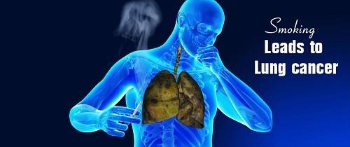 Phòng ngừa ung thư phổi
