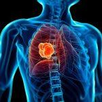 Phòng ngừa ung thư phổi thế nào?