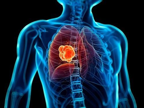 Phòng ngừa ung thư phổi thế nào