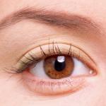 Sưng mí mắt là bệnh gì?