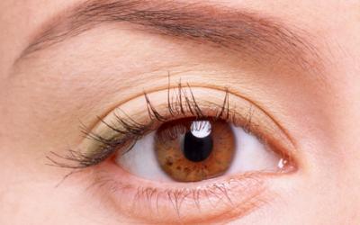Sưng mí mắt là bệnh gì và phải làm sao?