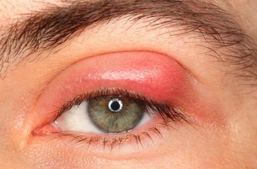 Viêm bờ mi có thể là nguyên nhân gây sưng mí mắt
