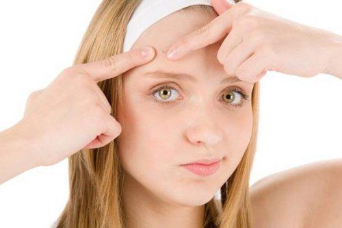 Tuổi dậy thì, các bé gái thường thấy mụn xuất hiện nhiều.