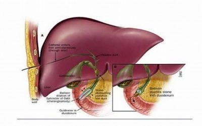 Triệu chứng bệnh sỏi gan là gì?