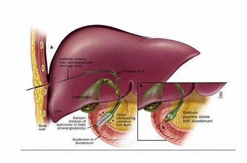 Bệnh sỏi gan cần được phát hiện sớm và điều trị kịp thời hiệu quả