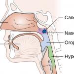 Bị ung thư vòm họng sống được bao lâu?