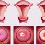 Viêm lộ tuyến cổ tử cung có nguy hiểm không?