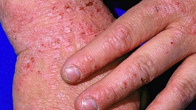 Bệnh eczema cần được phát hiện sớm và điều trị càng sớm càng tốt