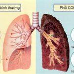 Bệnh lao phổi nguy hiểm như thế nào?